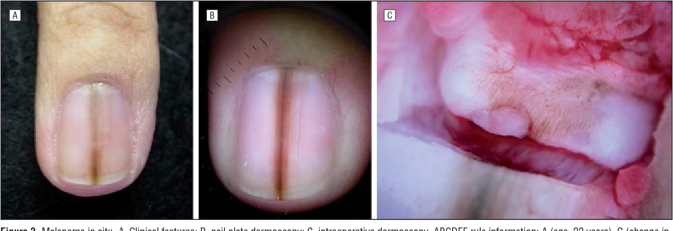 Figure 3 from Dermatologists\' accuracy in early diagnosis of ...