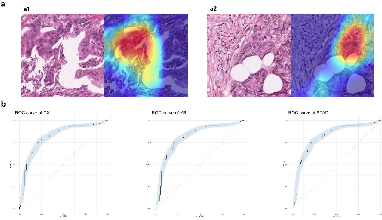 Figure 1 for Computational analysis of pathological image enables interpretable prediction for microsatellite instability