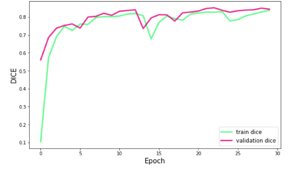 Figure 3 for MixLacune: Segmentation of lacunes of presumed vascular origin
