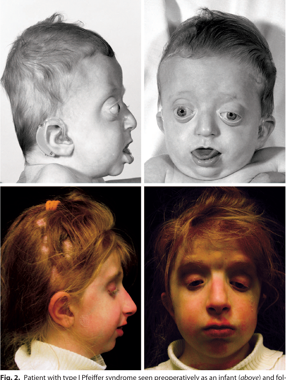 figure 2 from pfeiffer syndrome a treatment evaluation semantic