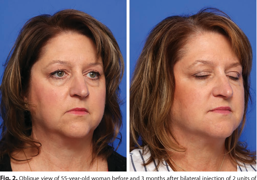 Figure 2 from Lower Face Rejuvenation with Injections: Botox