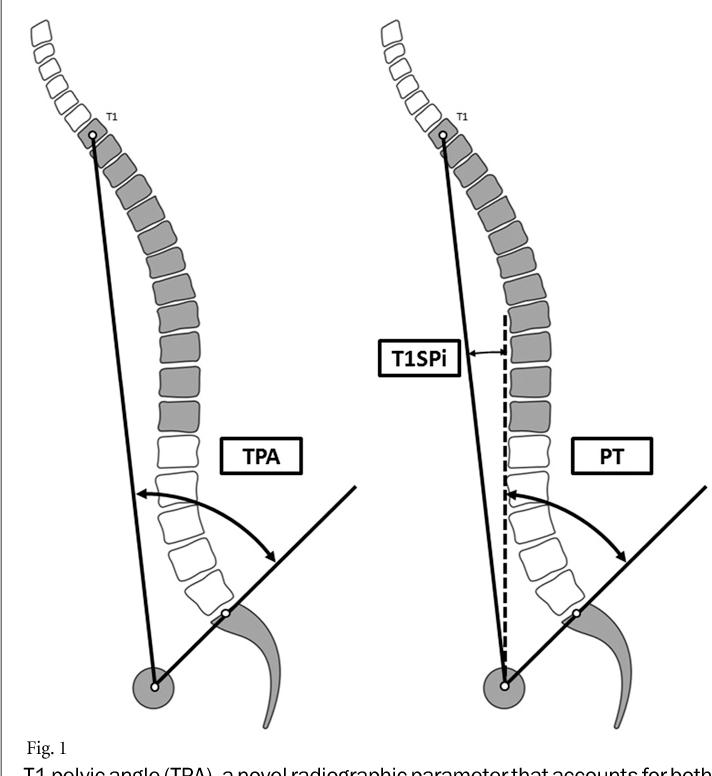 pelvic inclination angle
