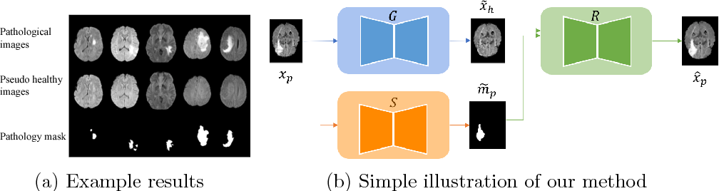 Figure 1 for Adversarial Pseudo Healthy Synthesis Needs Pathology Factorization