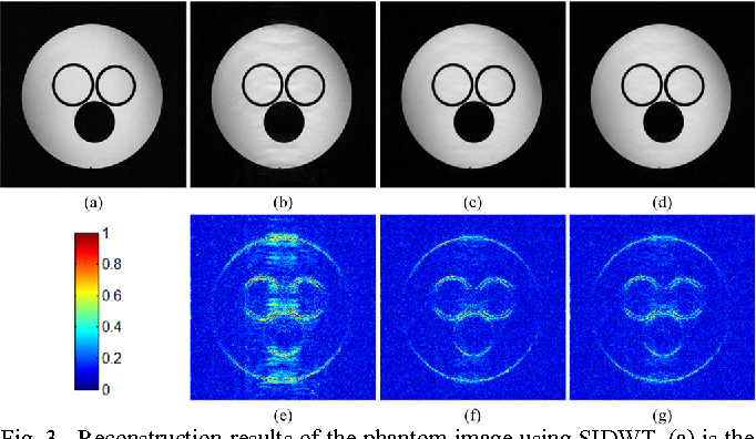 Figure 4 for Projected Iterative Soft-thresholding Algorithm for Tight Frames in Compressed Sensing Magnetic Resonance Imaging