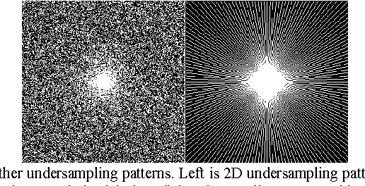 Figure 2 for Projected Iterative Soft-thresholding Algorithm for Tight Frames in Compressed Sensing Magnetic Resonance Imaging
