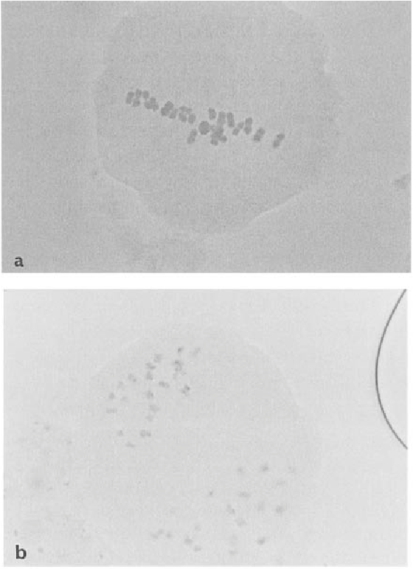 Fig . 1 . Chromosome analysis of pollen mother cells derived from plants with 2n = 40 showing (a) 20 bivalents at metaphase I and (b) segregation into 20 : 20 at metaphase n .