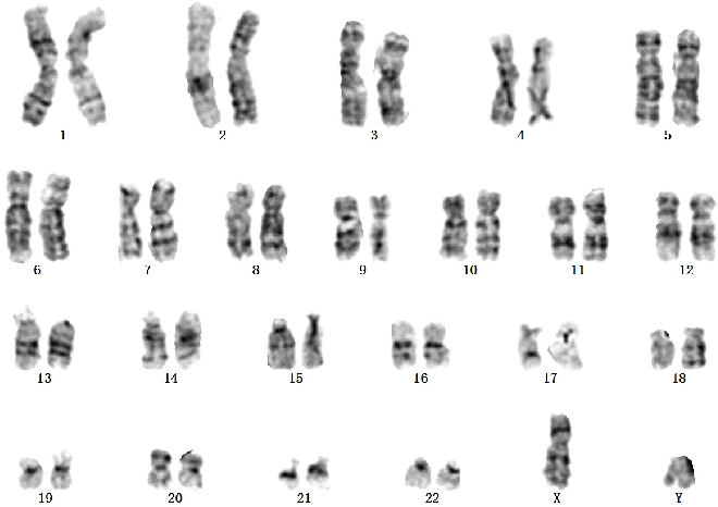 Figure 1 for A Novel Application of Image-to-Image Translation: Chromosome Straightening Framework by Learning from a Single Image
