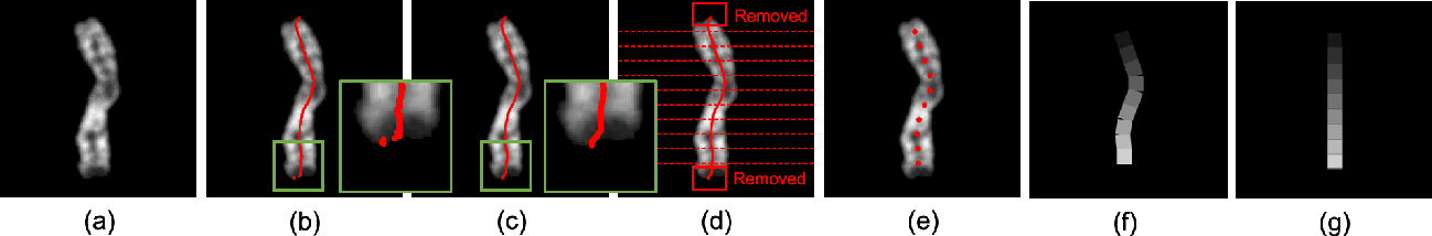 Figure 2 for A Novel Application of Image-to-Image Translation: Chromosome Straightening Framework by Learning from a Single Image