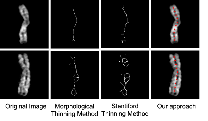 Figure 4 for A Novel Application of Image-to-Image Translation: Chromosome Straightening Framework by Learning from a Single Image