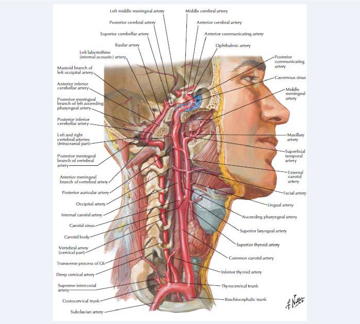 Internal Carotid Artery Kinks and Coils : Repair with Autologous ...