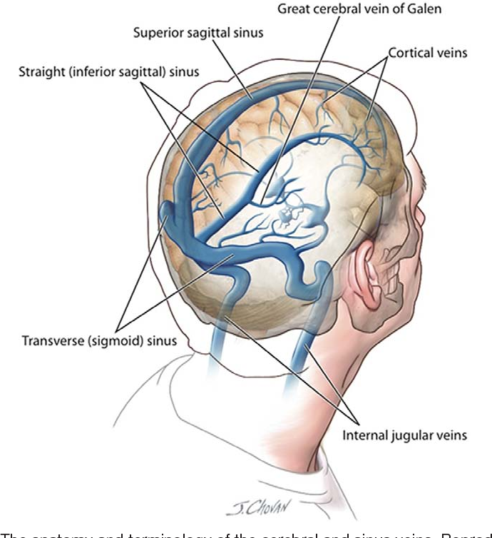 Figure 1 from Cerebral and sinus vein thrombosis. - Semantic Scholar