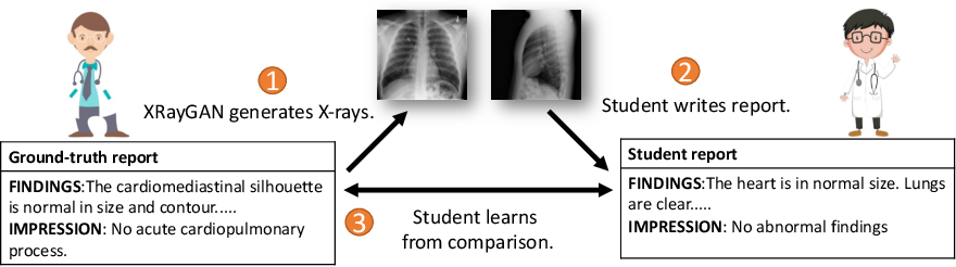 Figure 1 for XRayGAN: Consistency-preserving Generation of X-ray Images from Radiology Reports