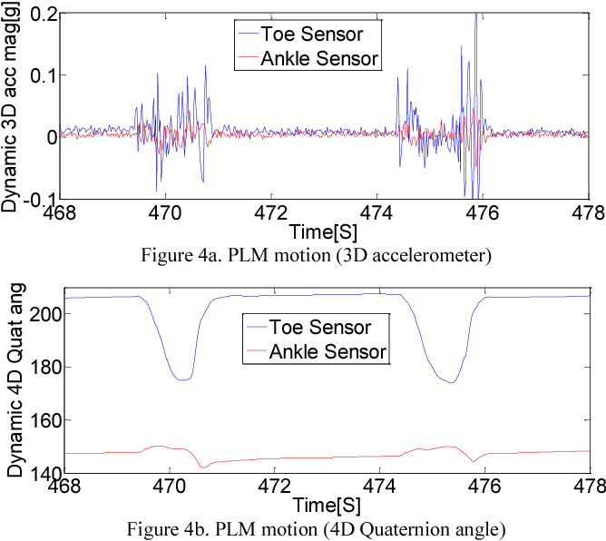 Figure 3 from Periodic leg movement (PLM) monitoring using a