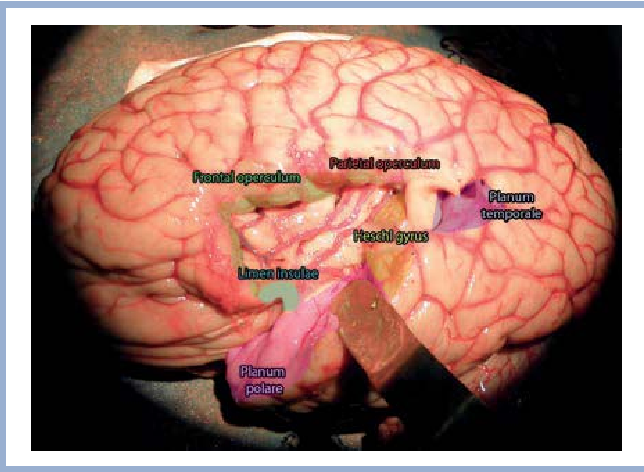 Figure 2 from [Surgical anatomy of the insular cortex]. - Semantic ...