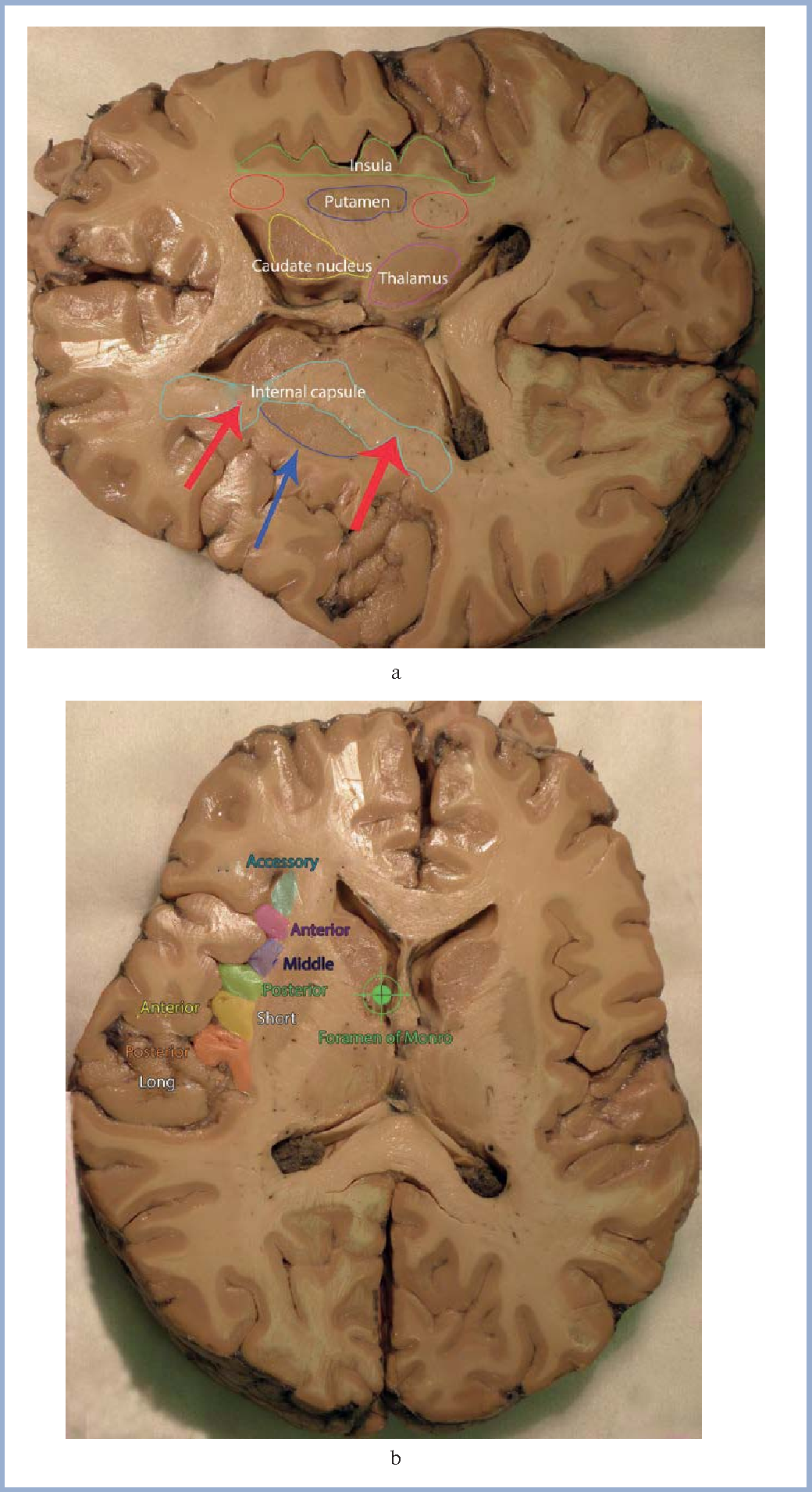 Figure 8 from [Surgical anatomy of the insular cortex]. - Semantic ...