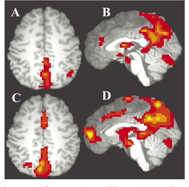 Brain Imaging Reveals Adhd As >> Figure 2 From Altered Baseline Brain Activity In Children With Adhd