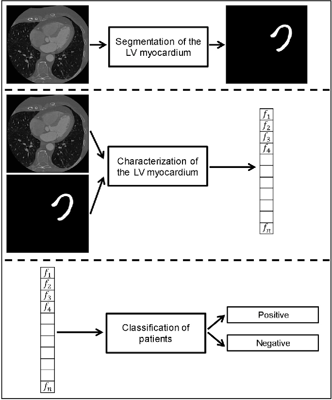 Figure 1 for Deep learning analysis of the myocardium in coronary CT angiography for identification of patients with functionally significant coronary artery stenosis