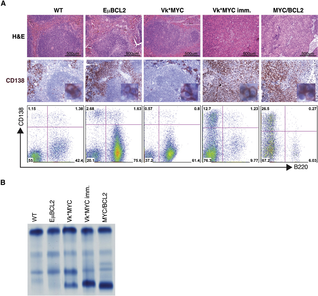 Figure 4. BM-Independent PC Growth in Vk*MYCxEmBCL2 Mice (A) Spleen sections from aged WT, EmBCL2, Vk*MYC, Vk*MYC-immunized, and Vk*MYCxEmBCL2 mice were stained with anti-CD138 antibody to identify PCs. In the lower panel is shown flow cytometric analysis on the same tissues. Numbers represent cell percentage within each gate. All images are of the same magnification, and scale bar is shown. A zoomed-in insert of CD138+ PCs is shown. (B) SPEP identified pronounced M-spikes in Vk*MYC, Vk*MYC-immunized, and Vk*MYCxEmBCL2 mice, but not in WT or EmBCL2.