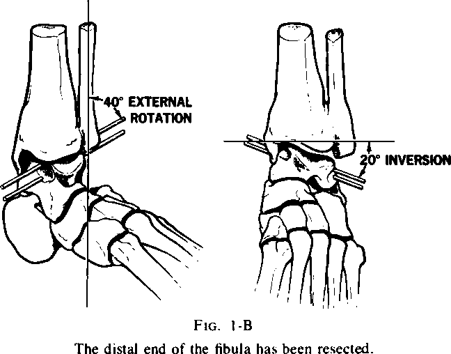 The Key Role Of The Lateral Malleolus In Displaced Fractures Of The