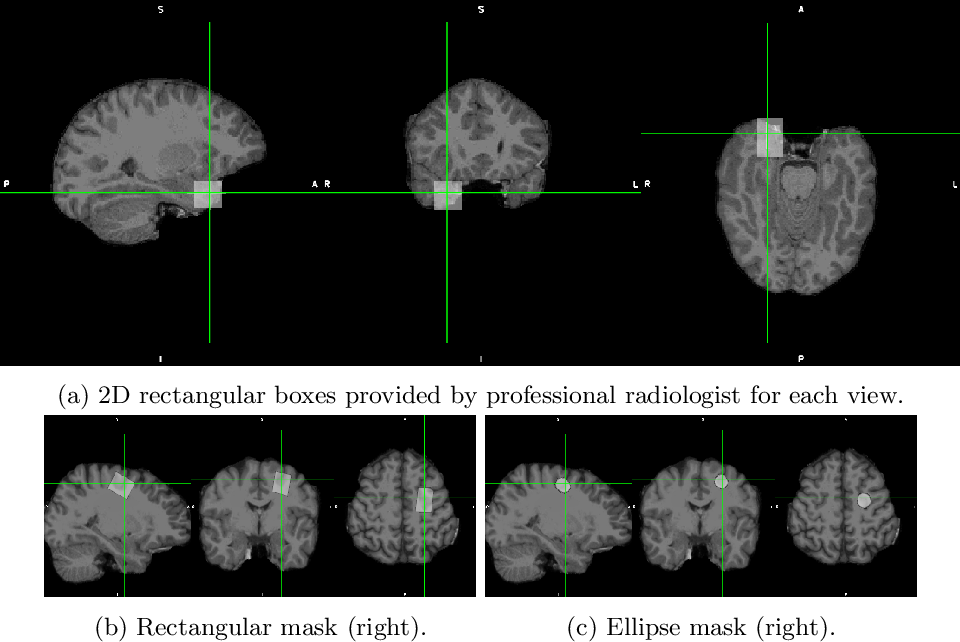 Figure 1 for Convolutional neural networks for automatic detection of Focal Cortical Dysplasia