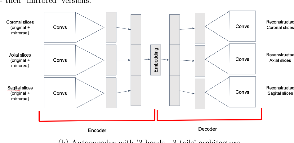 Figure 3 for Convolutional neural networks for automatic detection of Focal Cortical Dysplasia