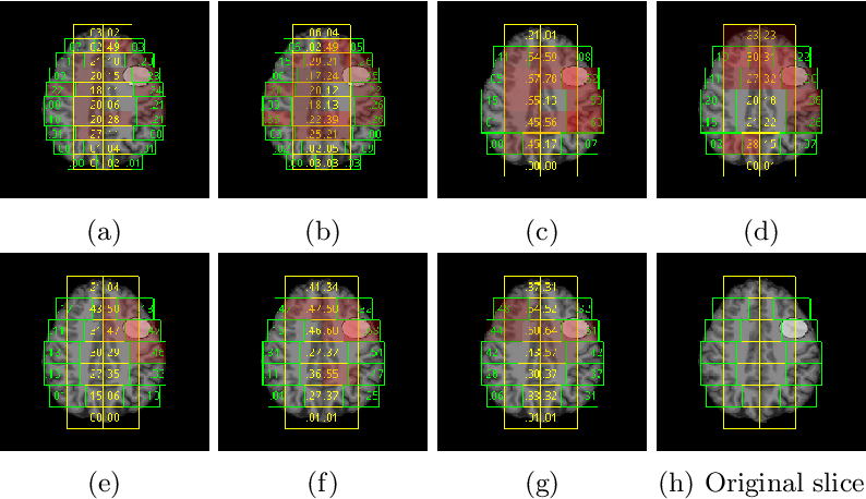 Figure 4 for Convolutional neural networks for automatic detection of Focal Cortical Dysplasia