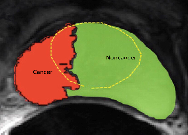 Figure 2 for Multi-resolution Super Learner for Voxel-wise Classification of Prostate Cancer Using Multi-parametric MRI