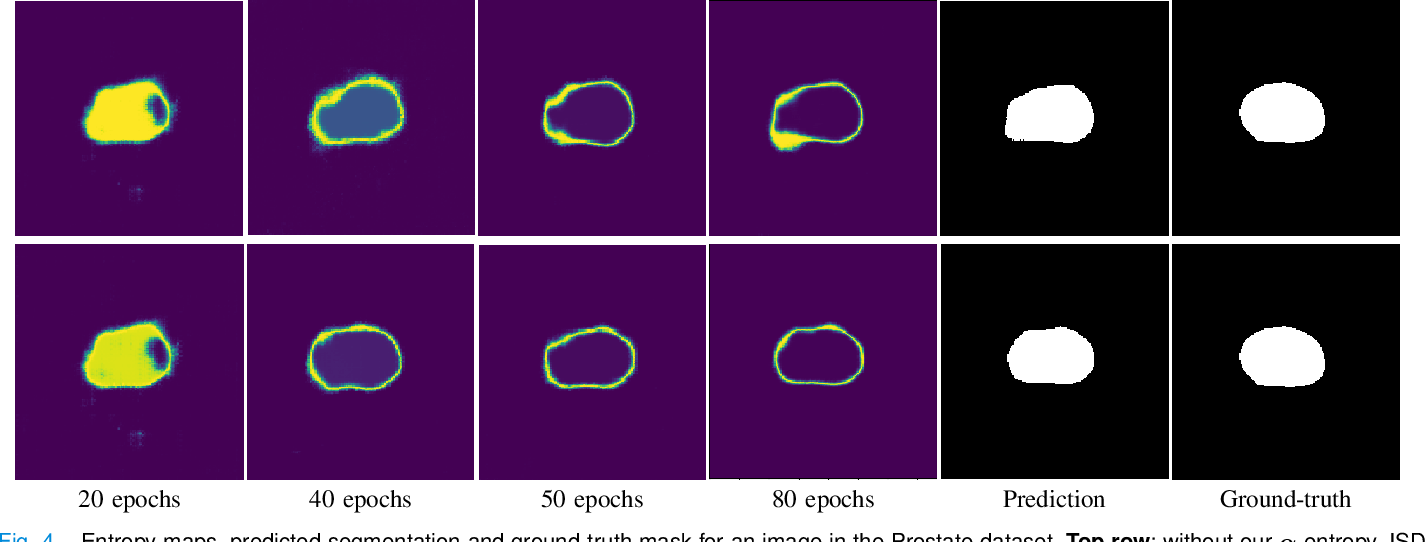 Figure 4 for Self-paced and self-consistent co-training for semi-supervised image segmentation