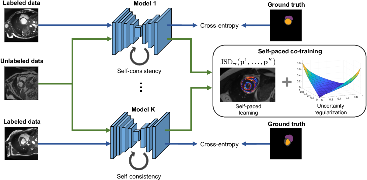 Figure 1 for Self-paced and self-consistent co-training for semi-supervised image segmentation
