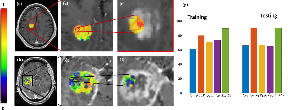 "Figure 2 for Spatial-And-Context aware (SpACe) ""virtual biopsy"" radiogenomic maps to target tumor mutational status on structural MRI"