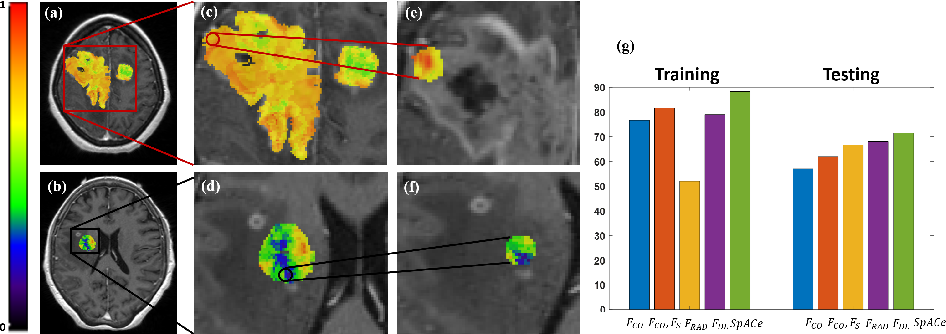 "Figure 3 for Spatial-And-Context aware (SpACe) ""virtual biopsy"" radiogenomic maps to target tumor mutational status on structural MRI"