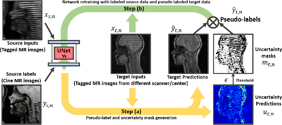 Figure 1 for Generative Self-training for Cross-domain Unsupervised Tagged-to-Cine MRI Synthesis