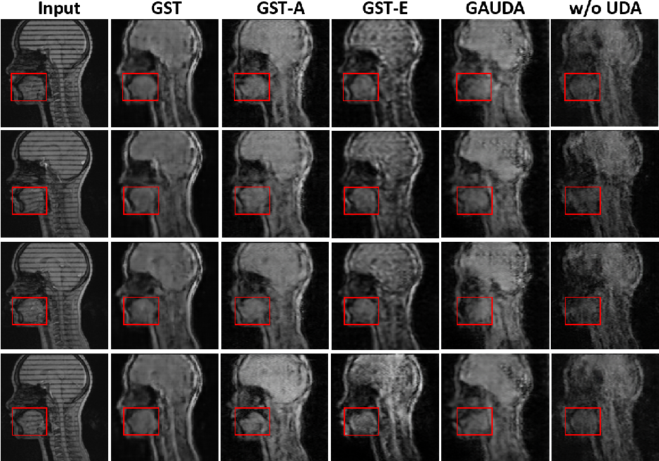 Figure 4 for Generative Self-training for Cross-domain Unsupervised Tagged-to-Cine MRI Synthesis