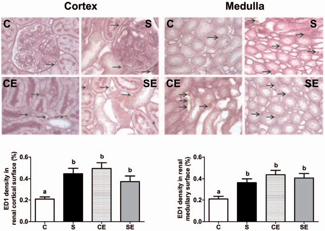 Figure 9. Macrophage infiltration of cortical and medullary regions evaluated by immunostaining of ED1 antigen. Upper and middle panels are representative fields (6400) of cortex and medulla from C, S, CE and SE experimental groups. Arrows point to ED1 positive cells. Lower panels present percentage values of ED1 surface density per field in cortex (left) and medulla (right). Different lowercase letters above bars indicate statistically different values (P,0.05). doi:10.1371/journal.pone.0043791.g009