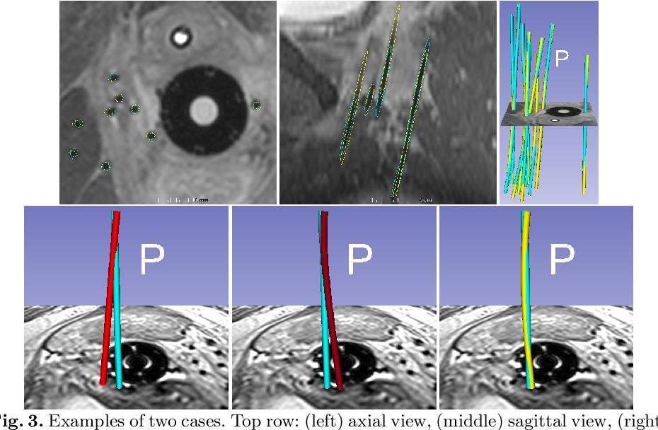 Figure 2 for Model-based Catheter Segmentation in MRI-images
