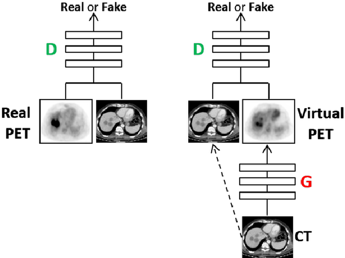 Figure 3 for Cross-Modality Synthesis from CT to PET using FCN and GAN Networks for Improved Automated Lesion Detection