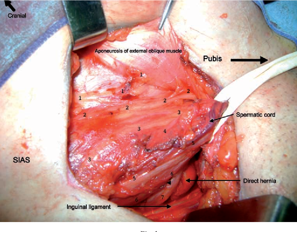 Figure 1 from A very nervous inguinal floor: report of a case ...