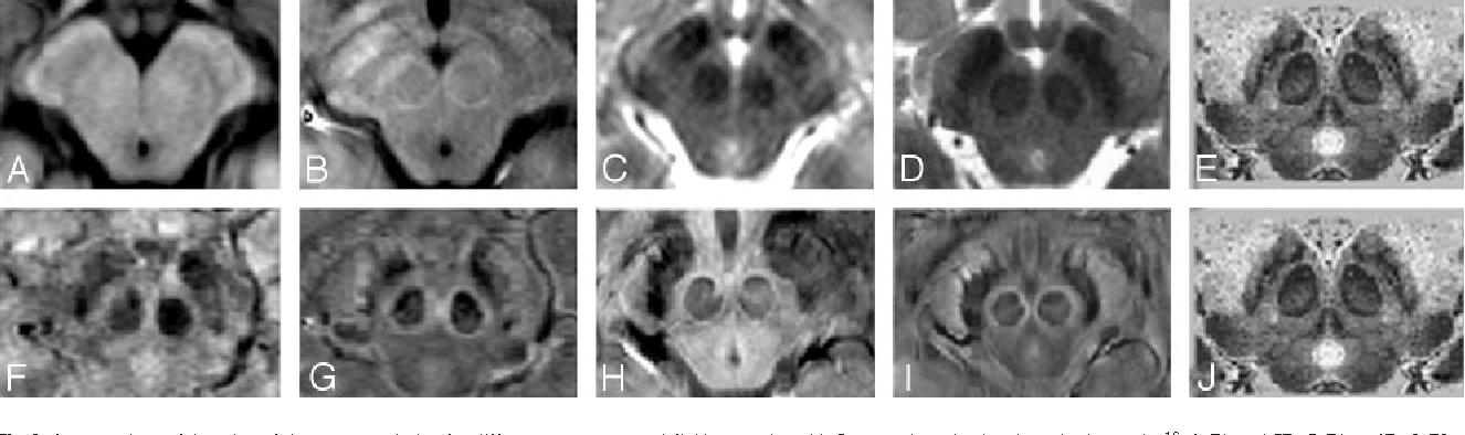 Figure 2 from Characterizing the mesencephalon using susceptibility ...