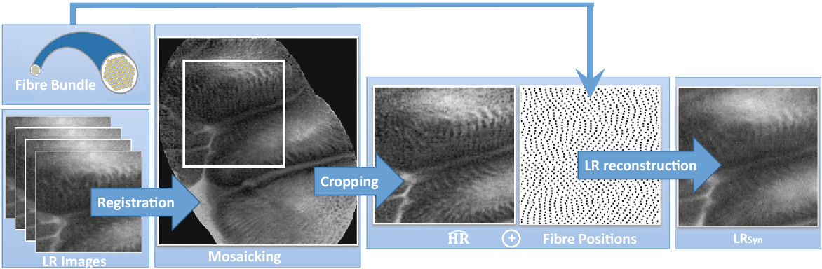 Figure 1 for Effective deep learning training for single-image super-resolution in endomicroscopy exploiting video-registration-based reconstruction