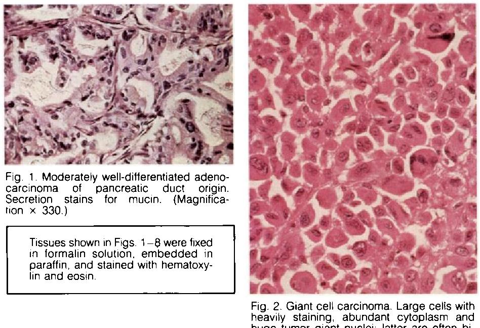 Cancer Of The Exocrine Pancreas The Pathologic Aspects Semantic