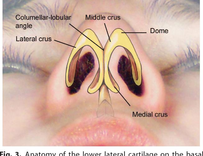 Defining The Infratip Lobule In Rhinoplasty Anatomy Pathogenesis