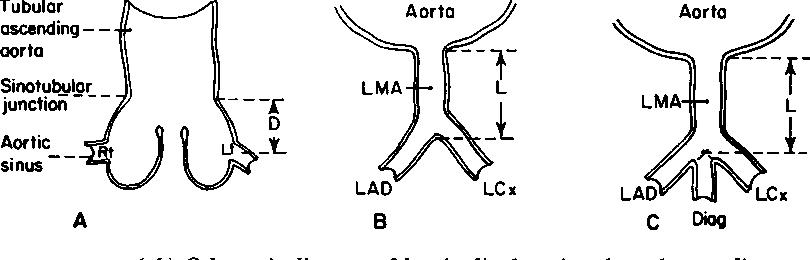 Figure 1 From Coronary Arterial Anatomy In Bicuspid Aortic Valve