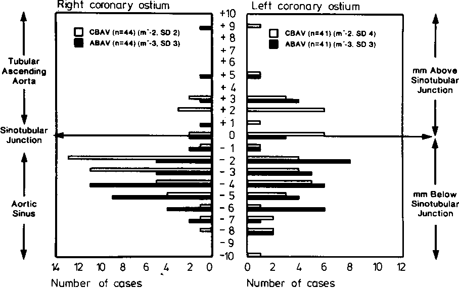 Figure 3 from Coronary arterial anatomy in bicuspid aortic valve ...