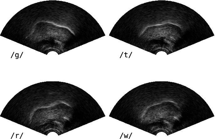 Figure 2 for Exploiting ultrasound tongue imaging for the automatic detection of speech articulation errors