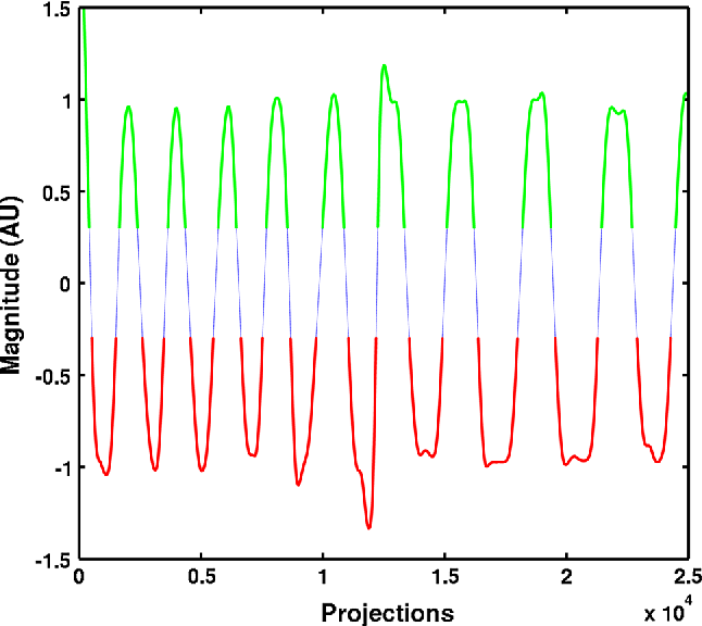 Fig. 3 Signal magnitude at k-space center plotted against number of projections during free-breathing imaging at TE of 0.07 ms. Views corresponding to green and red segments were used to reconstruct images at expiration and inspiration, respectively
