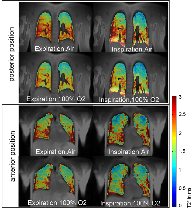 Fig. 4 T 2 maps (in ms) for one anterior and one posterior coronal slice at expiration and inspiration of room air and pure oxygen