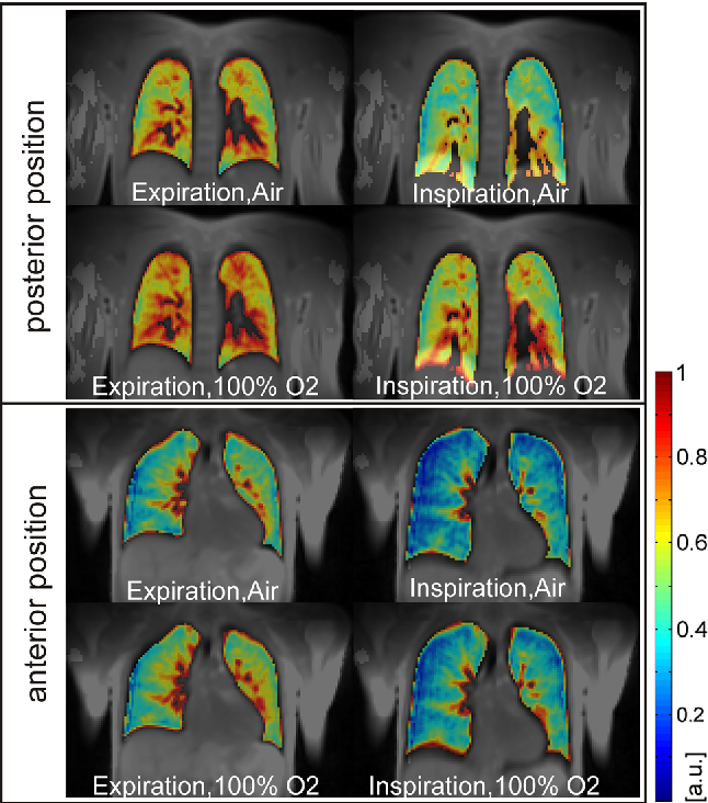 Fig. 6 T1-weighted images of one anterior and one posterior coronal slice at expiration and inspiration for subjects breathing room air and 100 % oxygen