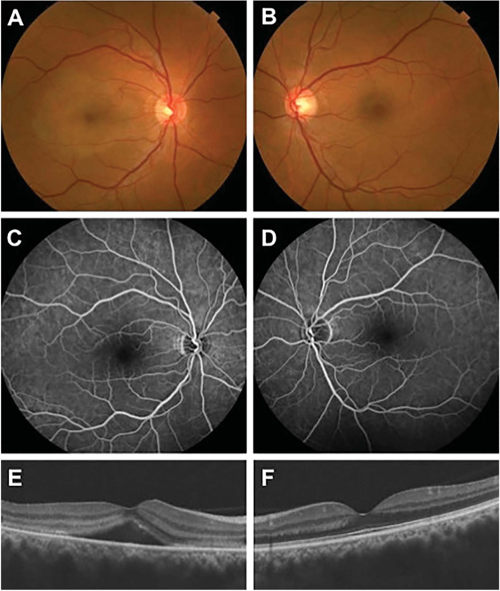Spectral Domain Optical Coherence Tomography Findings Of Commotio