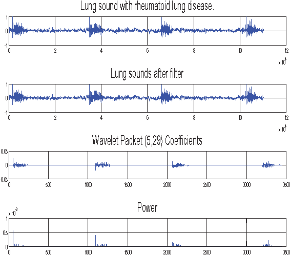 Figure 6 from Lung sound analysis based methodology to