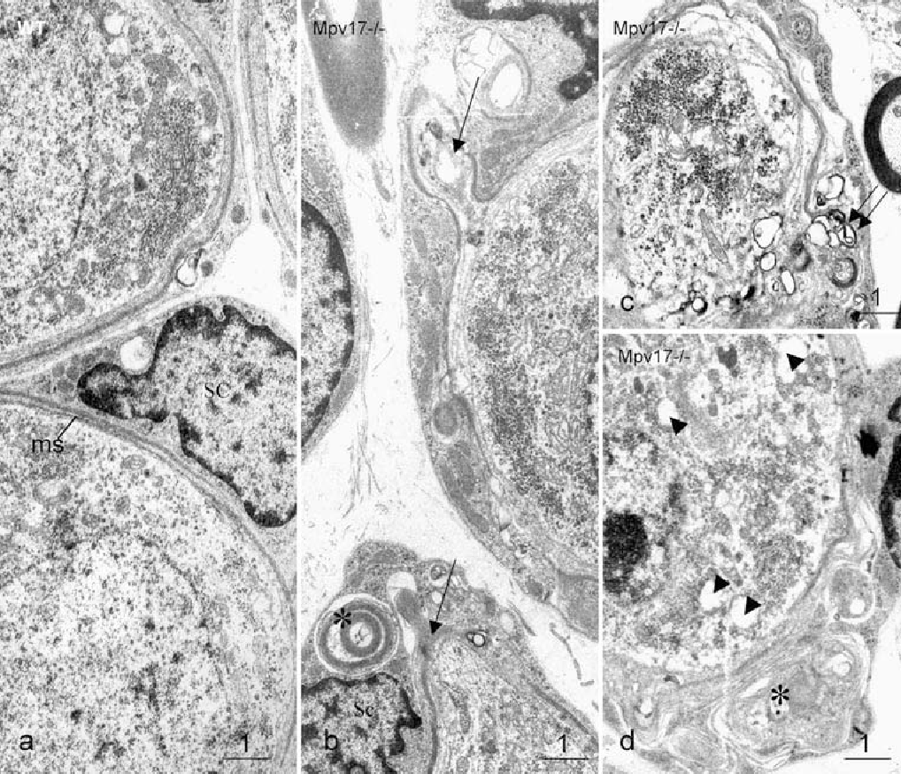 Fig. 5 Examples of electron micrographs of SGCs in 2-month-old mice. aWT mouse (ms myelin sheath. b-d Mpv17-/- mouse showing a lamination and an invagination of the myelin sheath (arrows) into the cytoplasm of the Schwann cell, the accumulation of myelin-like structures, debris (asterisk) and onion blobs (double arrow) and occasionally the formation of cytoplasmic vacuoles (arrowheads). Bars 1 μm